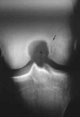 Anteroposterior radiograph of the right knee demon