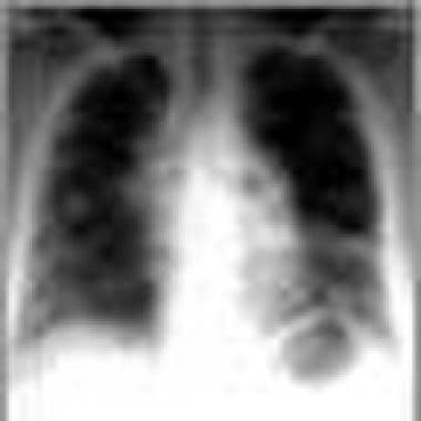 Advanced chest radiograph findings in sarcoidosis.