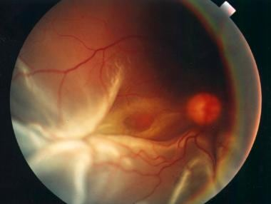 Clinical picture of a rhegmatogenous retinal detac