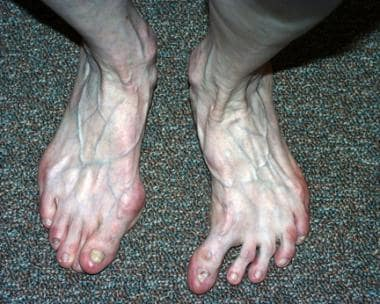 Clinical photo of idiopathic hallux varus of left