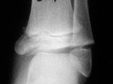 Growth plate (physeal) fractures. The Salter-Harri