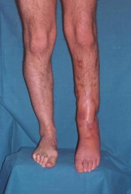 Clinical Case 2. Postoperative picture. Postoperat