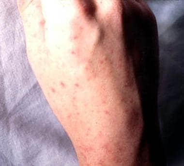 Dorsum of the hand showing petechiae. Courtesy of
