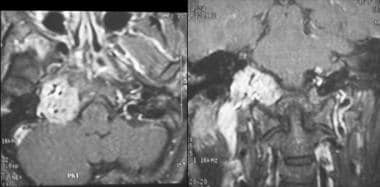 Paraganglioma. Contrast-enhanced MRI scan of the a