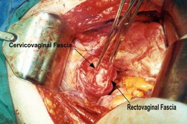 Enterocele and massive vaginal eversion. Large api