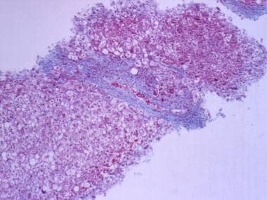 Liver biopsy with trichrome stain showing stage 3