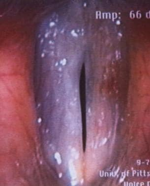 Videostroboscopy of postoperative vocal fold polyp