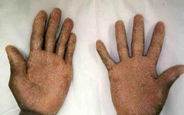 Acute graft versus host disease (GVHD) involving d