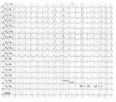 Creutzfeldt-Jakob disease. This is a 56-year-old f