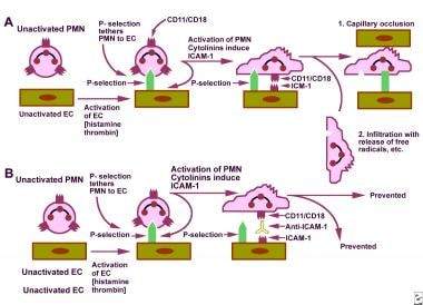A. Schematic representation of the process of endo