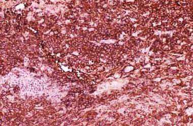 An immunohistochemical stain using an antibody dir