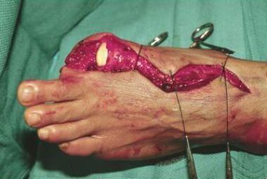 Amputation of left big toe.