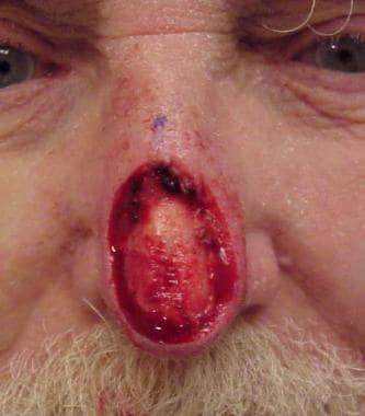 A large surgical wound of the nasal tip and suprat