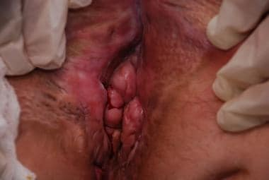 Perianal granuloma in a patient with severe perian