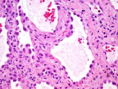 Fibrotic non-specific interstitial pneumonia (NSIP