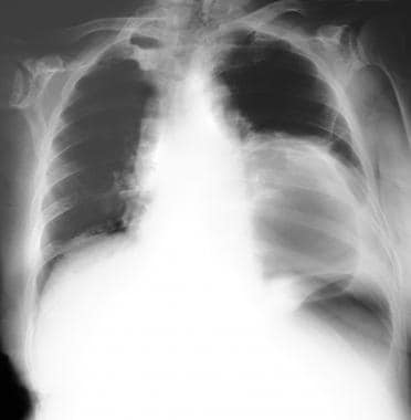 A chest radiograph in a patient with a huge air-fi