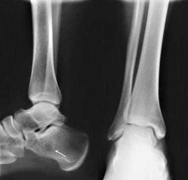 Calcaneus, fractures. Normal variants, complicatio