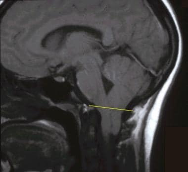 Sagittal T1-weighted magnetic resonance image of t