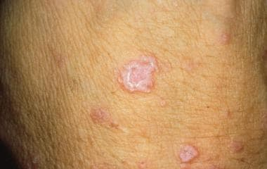 Lichen planus (Image courtesy of Hon Pak, MD)