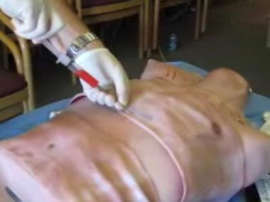 Needle insertion: Slowly advance the spinal needle