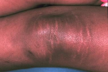 A 14-year-old adolescent girl with Sjogren syndrom