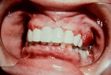 A large pedunculated mass on the gingiva resembles
