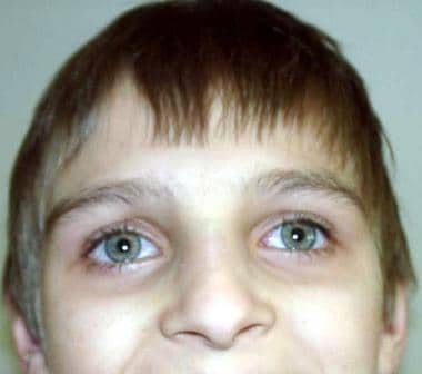 Face of a boy with ataxia-telangiectasia. Apparent