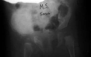 Radiograph from a 5-month-old infant with infantil