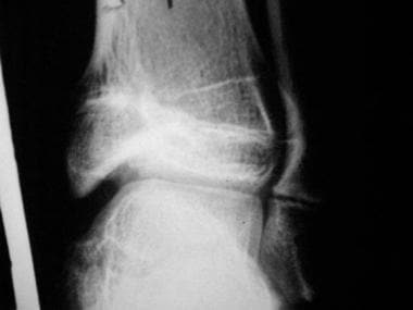 Growth plate (physeal) fractures. Follow-up radiog