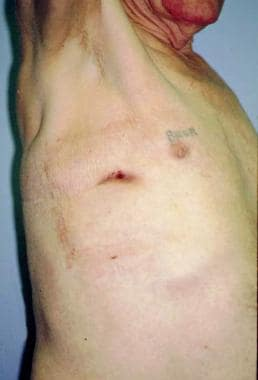 Right lateral photo of a patient who underwent pne