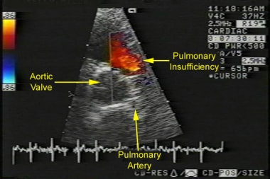 Pulmonic stenosis. Echocardiogram of a patient wit