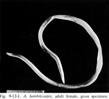 Adult Ascaris lumbricoides.