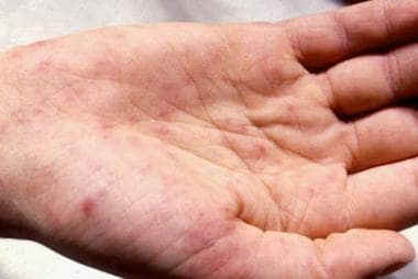 Petechiae on the palm. Courtesy of Professor Chien