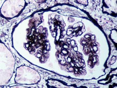 Membranoproliferative glomerulonephritis (MPGN) ty
