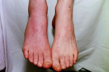 This photo shows the same patient as in the above