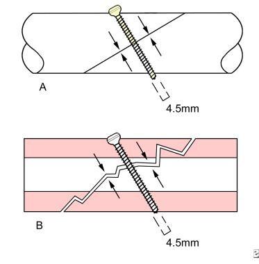T-lag screw.