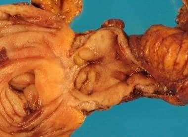 Mucosal pseudopolyps (inflammatory pseudopolyps) o