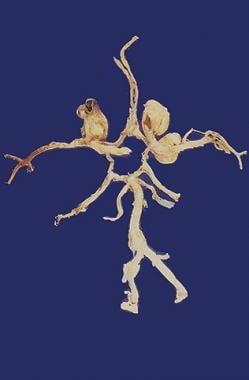 Circle of Willis has been dissected, and three ber