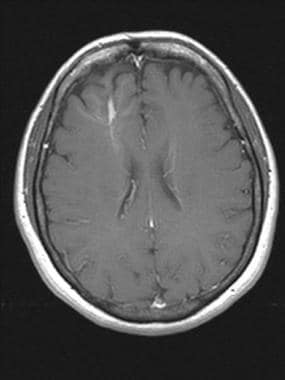 Brain, venous vascular malformation. Axial T1 post