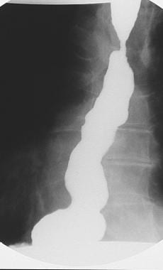 Spot radiograph shows spontaneous severe gastroeso