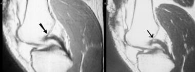 Partial tear of the proximal PCL. The proton densi
