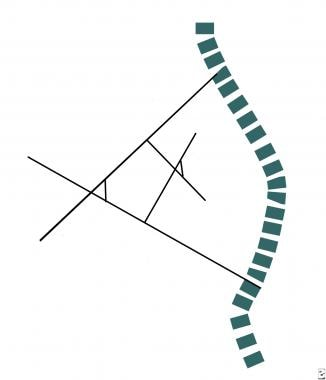 Line diagram illustrates measurement of the Cobb a