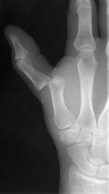 Thumb metacarpophalangeal (MCP) joint dislocation.
