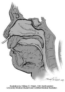 Anterior rhinomanometry. Illustration by William E