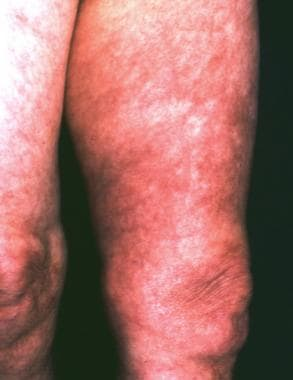 A 68-year-old woman with a history of untreated er