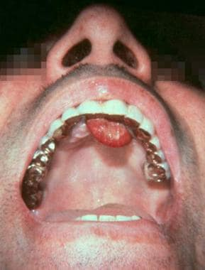 A large soft-tissue mass on the gingiva resembles