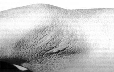 Acanthosis nigricans of the axillary fossa in Crou