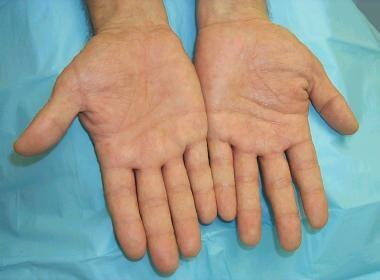 dyshidrotic eczema: background, etiology, epidemiology, Skeleton