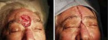 Midline forehead defect closed by primary vertical