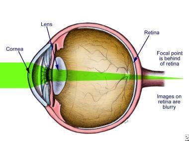 Illustration of hyperopia.
